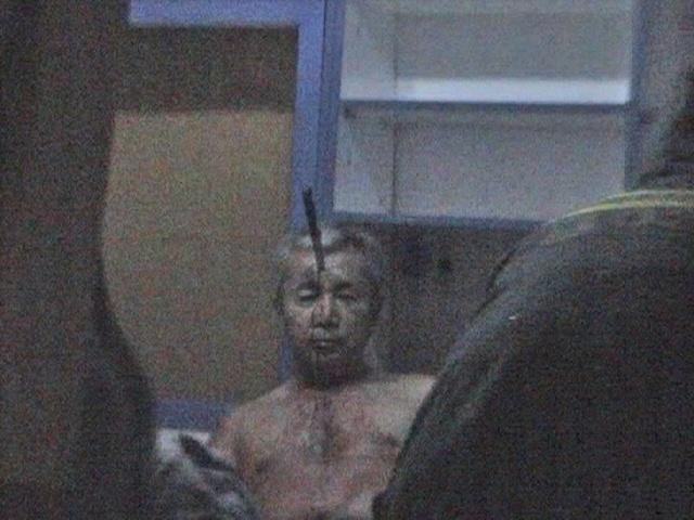 Қақ шекесіне пышақ сұғылған такси жүргізушісі нейрохирургия бөлімінде
